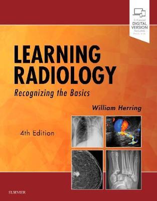 Learning Radiology