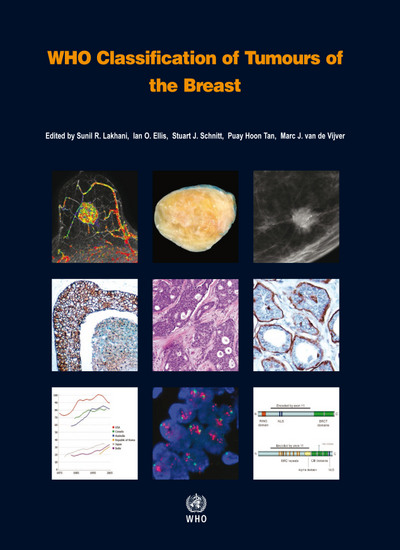 who classification of tumours of the breast 4e
