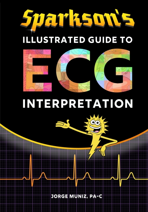Sparkson's Illustrated Guide to ECG Interpretation