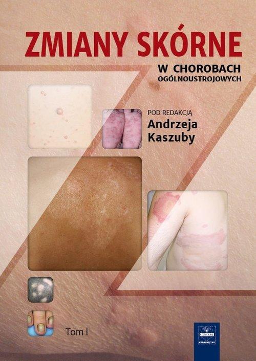 Zmiany skórne w chorobach.. Cover