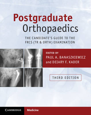 Postgraduate Orthopaedics: The Candidate's Guide to the FRCS (Tr & Orth) Examination
